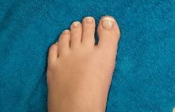 Afbeelding › Feetcare Tamara